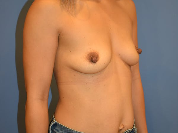 Breast Augmentation Gallery - Patient 13574570 - Image 5