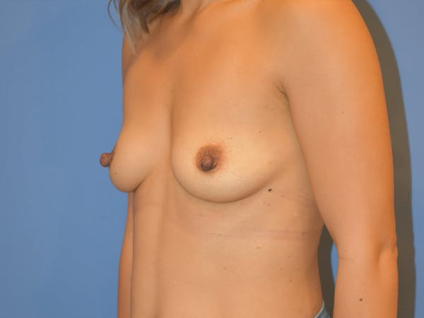 Breast Augmentation Gallery - Patient 13574570 - Image 7