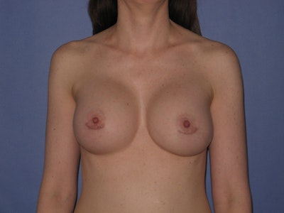 Breast Augmentation Gallery - Patient 13574571 - Image 2