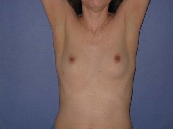 Breast Augmentation Gallery - Patient 13574571 - Image 3