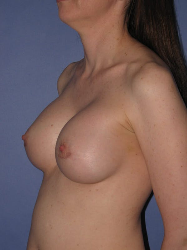 Breast Augmentation Gallery - Patient 13574571 - Image 4