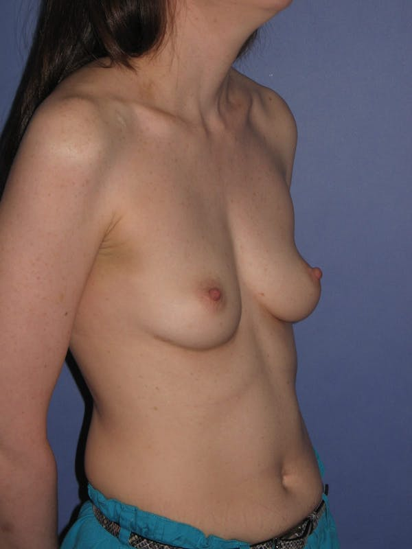 Breast Augmentation Gallery - Patient 13574571 - Image 5