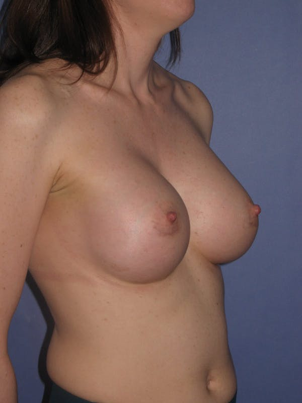 Breast Augmentation Gallery - Patient 13574571 - Image 6