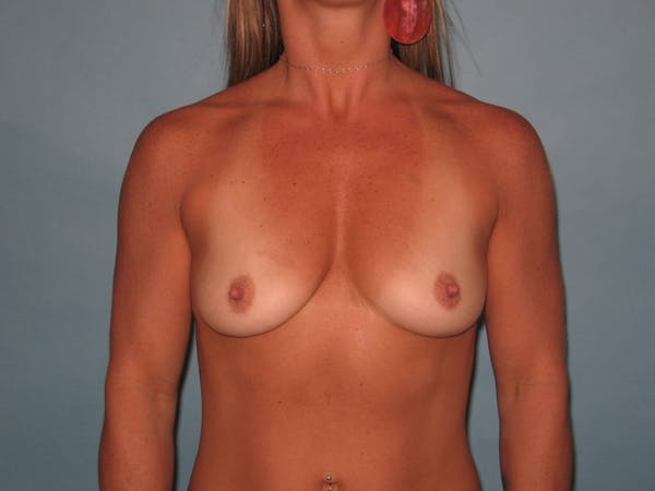 Breast Augmentation Gallery - Patient 13574575 - Image 1