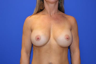 Breast Augmentation Gallery - Patient 13574575 - Image 2