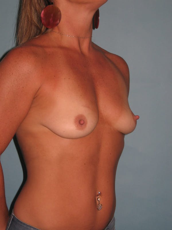 Breast Augmentation Gallery - Patient 13574575 - Image 3