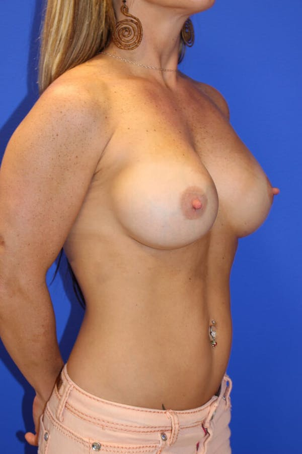 Breast Augmentation Gallery - Patient 13574575 - Image 4