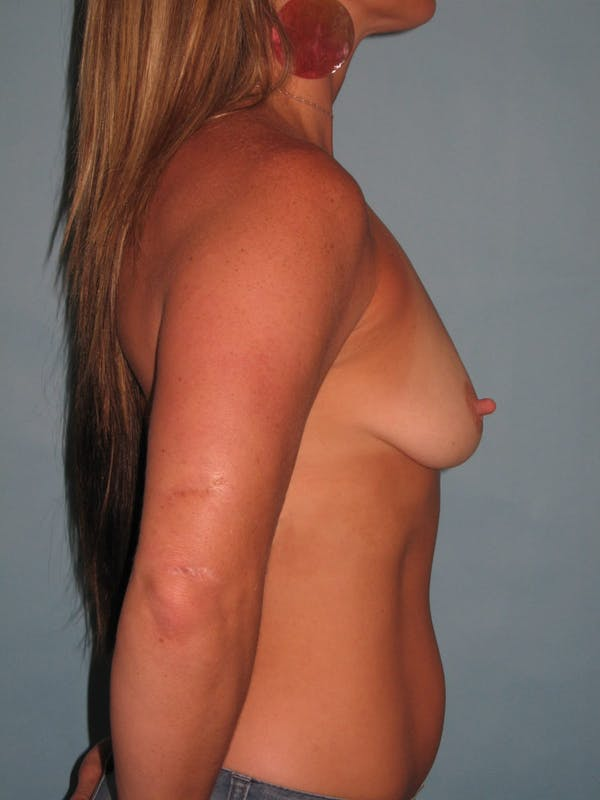 Breast Augmentation Gallery - Patient 13574575 - Image 5
