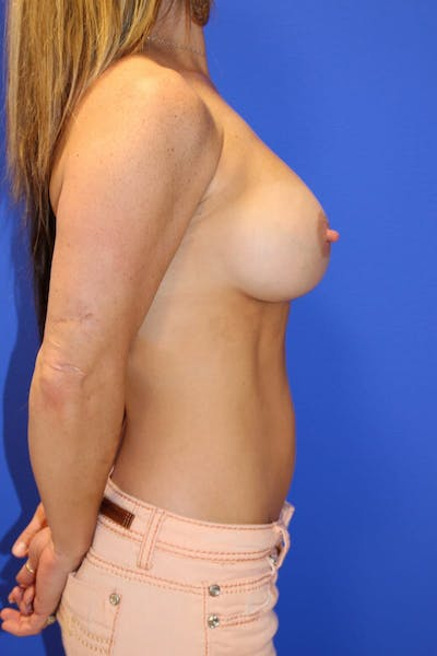 Breast Augmentation Gallery - Patient 13574575 - Image 6