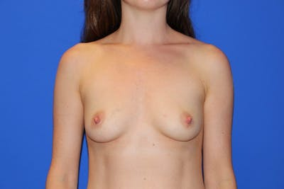 Breast Augmentation Gallery - Patient 13574576 - Image 1