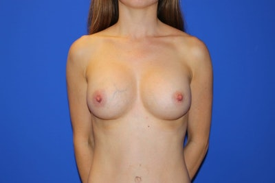 Breast Augmentation Gallery - Patient 13574576 - Image 2