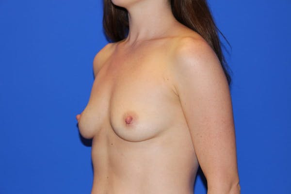 Breast Augmentation Gallery - Patient 13574576 - Image 3