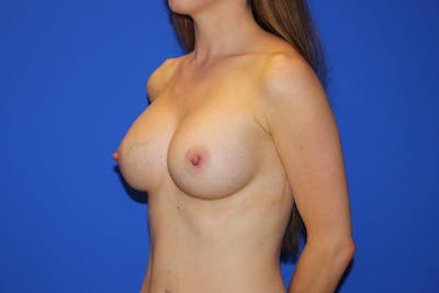 Breast Augmentation Gallery - Patient 13574576 - Image 4