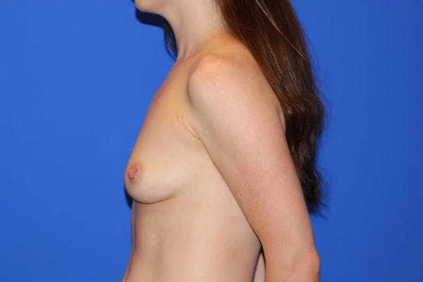 Breast Augmentation Gallery - Patient 13574576 - Image 5