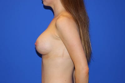 Breast Augmentation Gallery - Patient 13574576 - Image 6