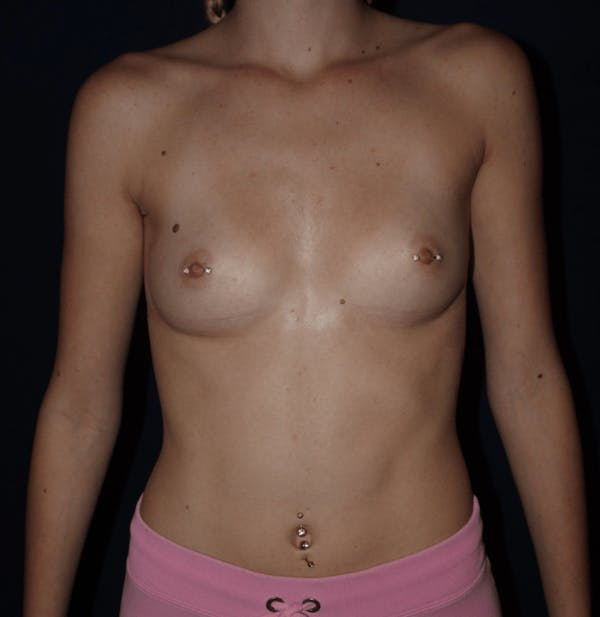 Breast Augmentation Gallery - Patient 13574579 - Image 1