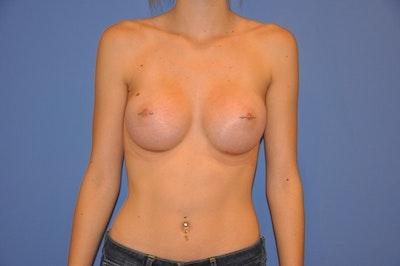 Breast Augmentation Gallery - Patient 13574579 - Image 2