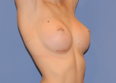 Breast Augmentation Gallery - Patient 13574579 - Image 4