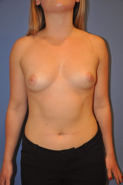 Breast Augmentation Gallery - Patient 13574580 - Image 1