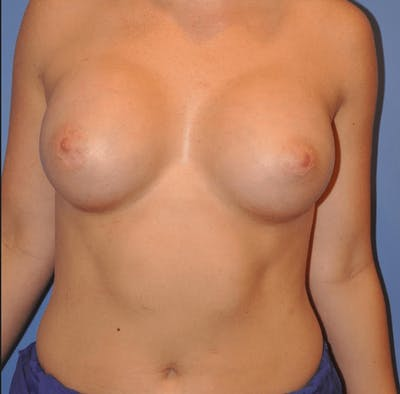 Breast Augmentation Gallery - Patient 13574580 - Image 2