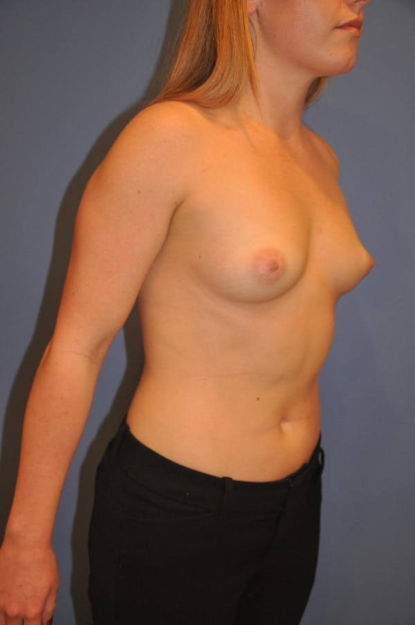 Breast Augmentation Gallery - Patient 13574580 - Image 3