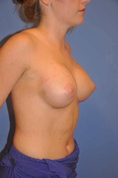 Breast Augmentation Gallery - Patient 13574580 - Image 4
