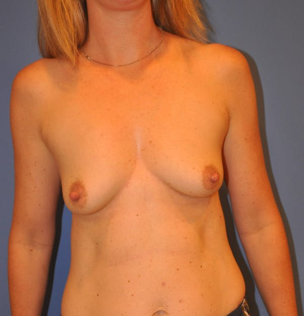 Breast Augmentation Gallery - Patient 13574587 - Image 1
