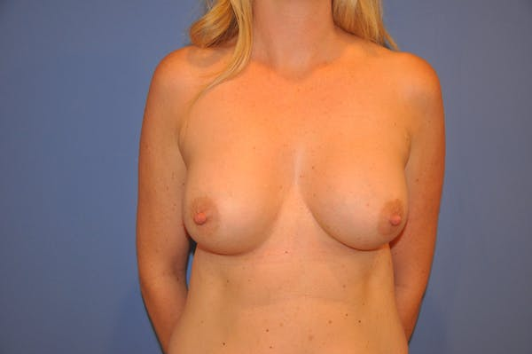 Breast Augmentation Gallery - Patient 13574587 - Image 2