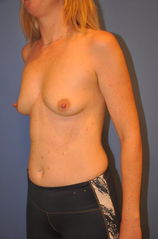 Breast Augmentation Gallery - Patient 13574587 - Image 3