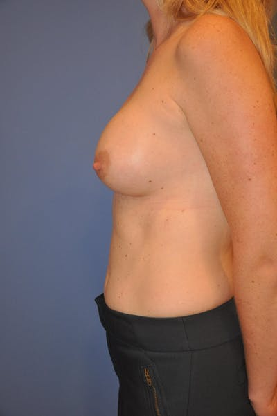 Breast Augmentation Gallery - Patient 13574587 - Image 4