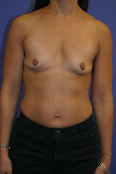 Breast Augmentation Gallery - Patient 13574589 - Image 1