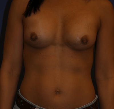 Breast Augmentation Gallery - Patient 13574589 - Image 2