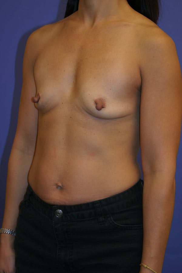 Breast Augmentation Gallery - Patient 13574589 - Image 3