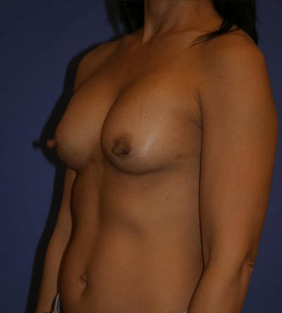 Breast Augmentation Gallery - Patient 13574589 - Image 4