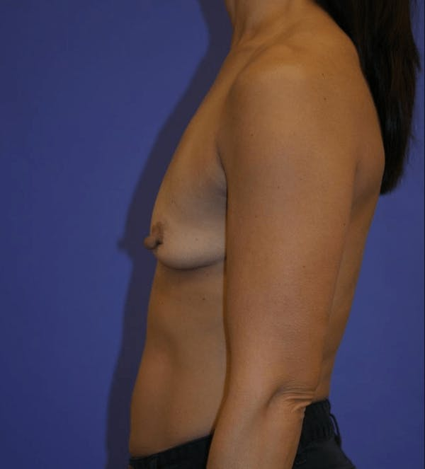 Breast Augmentation Gallery - Patient 13574589 - Image 5