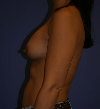 Breast Augmentation Gallery - Patient 13574589 - Image 6