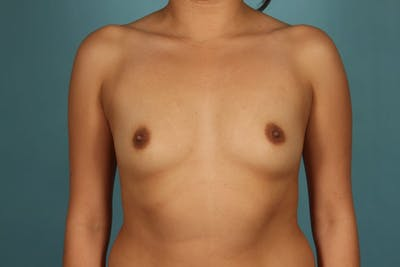 Breast Augmentation Gallery - Patient 13574591 - Image 1