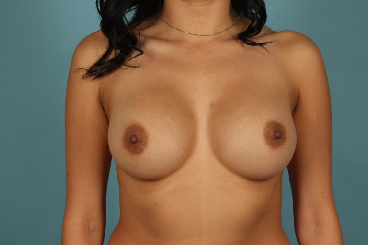Dr. Wirth's Newport Beach Breast Augmentation Before & After