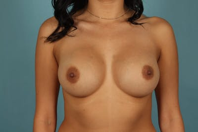 Breast Augmentation Gallery - Patient 13574591 - Image 2