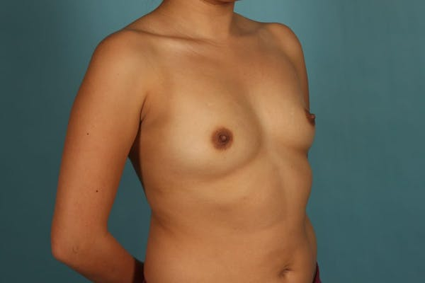 Breast Augmentation Gallery - Patient 13574591 - Image 3