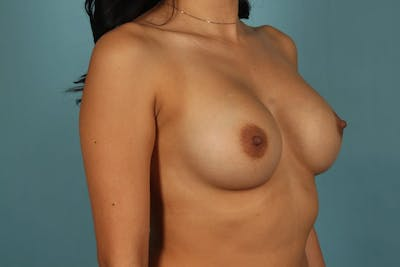 Breast Augmentation Gallery - Patient 13574591 - Image 4