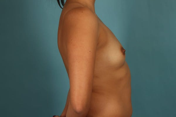Breast Augmentation Gallery - Patient 13574591 - Image 5