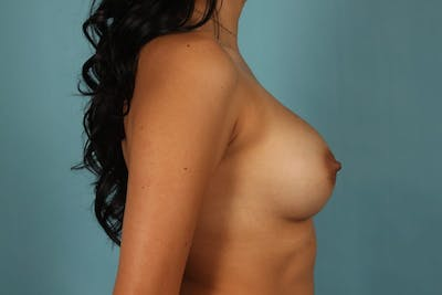 Breast Augmentation Gallery - Patient 13574591 - Image 6