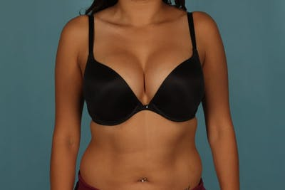 Breast Augmentation Gallery - Patient 13574591 - Image 8