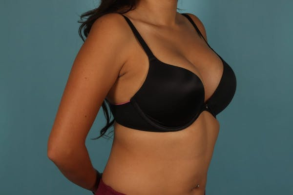 Breast Augmentation Gallery - Patient 13574591 - Image 10