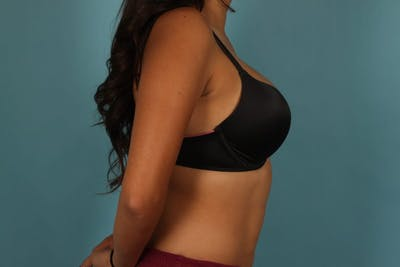 Breast Augmentation Gallery - Patient 13574591 - Image 12
