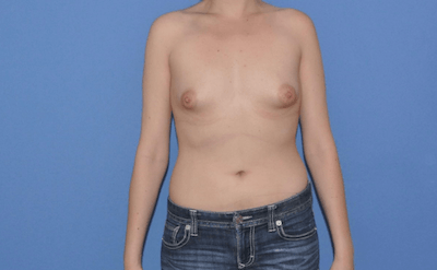 Breast Augmentation Gallery - Patient 13574594 - Image 1