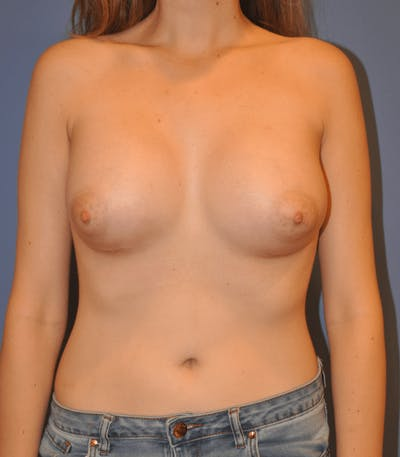 Breast Augmentation Gallery - Patient 13574594 - Image 2