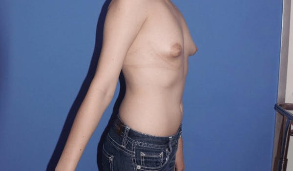Breast Augmentation Gallery - Patient 13574594 - Image 3