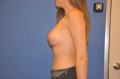 Breast Augmentation Gallery - Patient 13574594 - Image 6